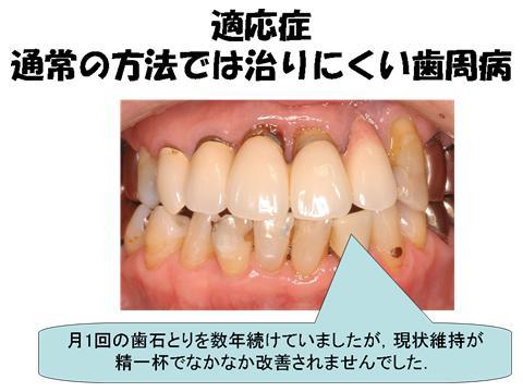 普通のお掃除だけでは改善しなかった方は、今までは外科的な処置を行ってきました。<br />今回紹介するシステムは外科的な処置をせず、お薬とクリーニングで改善をはかる方法です。
