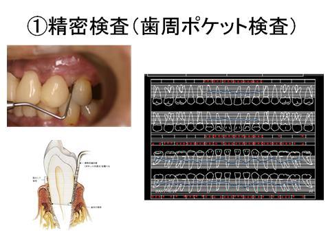 歯の周囲の歯肉には、歯を取り囲むようにポケット(溝)があります。このポケットは健康な歯肉にもあり、その深さの正常値は3ミリです。このポケットは一種のバリアーの役目をはたしており、体にとって必要なものですが、このポケットが深くなること=歯周病が進行しているということを意味します。一緒に歯の動揺度(骨の支持に関連),出欠の有無(炎症の有無),分岐部病変の有無(奥歯の股の間の骨吸収)などについて検査します。