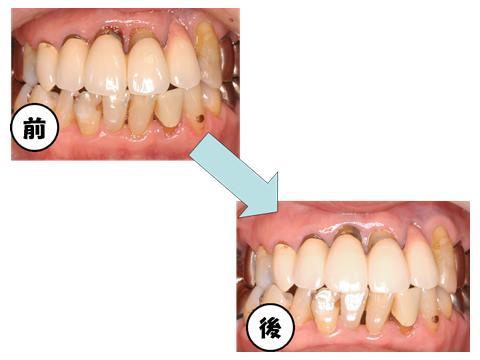 Kシステム除菌療法を行った方の治療前と治療後の写真です。歯肉の赤みがとれてひきしまっています。