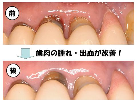 治療前後の前歯の状態です。
