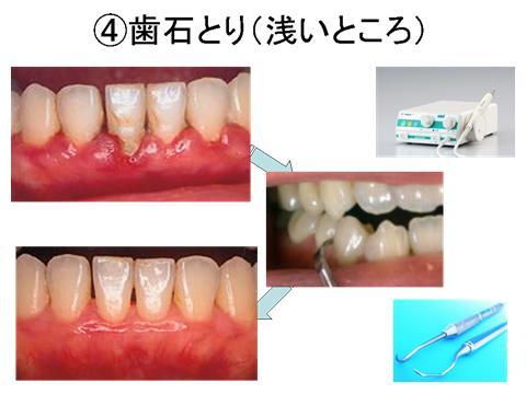 歯肉の周りに付着している白い硬いものが歯肉縁上の歯石です。これは歯ブラシでは除去できないので、超音波スケーラーか手用スケーラーで除去します。