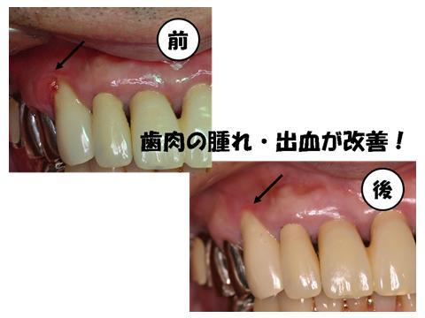 糸切り歯のまわりの腫れていた歯肉が改善されています。