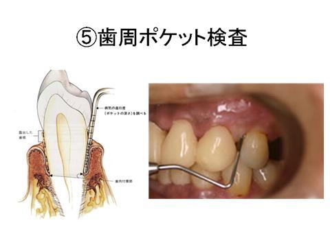 全体のプラークの除去や歯肉縁上の歯石除去が終了したら、再度ポケット検査を行います。歯周病も軽度のものなら、プラークと歯石の除去で改善します。