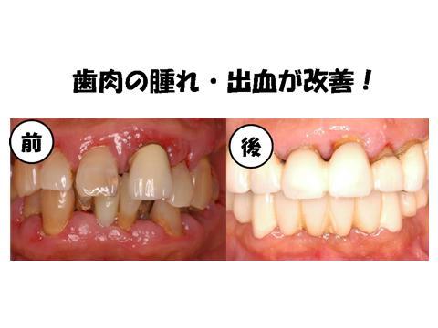 治療前後では、歯周病菌も減ってきています。