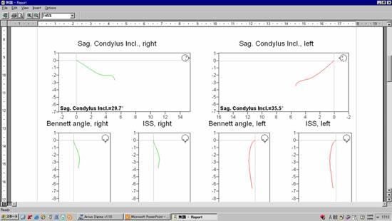 この画面は顎の動きの軌跡を表しています。軌跡の角度、速度、滑らかさ見ます。
