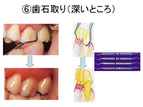 2回目のポケット検査で改善の見られなかった部位には歯肉縁下に歯石があるのでスケーリングルートプレーニングを行い汚染物質の除去ならびに歯面を滑沢にします。