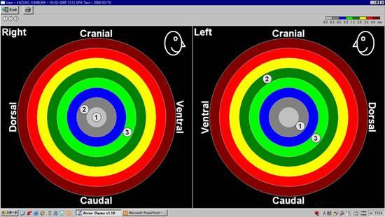 理想的な顎の位置(専門用語で中心位といいます)と実際のかみ合わせの位置とのずれをダーツの図の様なもので見ます。