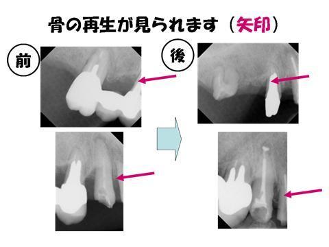 レントゲンでも歯を支える骨(歯槽骨)が回復してきています。