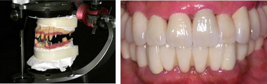 患者さんの顎の動きを正確に咬合器(左側)に再現し、修復物(右側)を作製します。患者さんの顎の動きが模倣できるので調整は最小限で違和感のない修復物が装着されます。