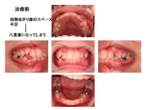 治療前のお口の中の写真です。治療計画の立案過程では、このほかに歯型の模型や、身長の変化の具合などを考慮し、咬合誘導による「歯並び・かみ合わせの健全な発育」が可能であるかを、判断します。咬合誘導をご希望の場合でも、すでに歯並び・かみ合わせが悪くなってしまっており、矯正歯科治療をお勧めすることがあります。ご了承下さい。