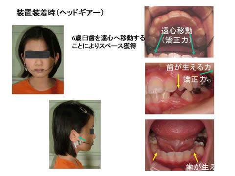 咬合誘導では、立案した治療計画に従い、お口の中に装置を装着し、経過を観察しながら、装置の調整を行います。