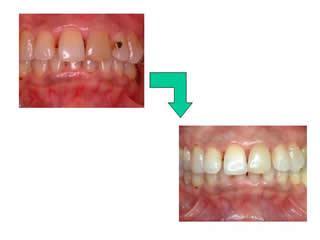 これは、毎日就寝時に漂白の薬をトレーにぬって、歯に装着します。これを3週間ほど続けますと、歯を削らずに白く輝く歯になっていきます。