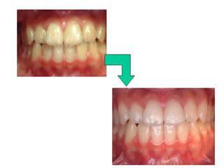 こちらは小樽熊澤歯科クリニックのスタッフの事例になります。歯科医院に勤務して初めて漂白の存在を知り、実際に行った患者さんの経過や効果をみて、ぜひやってみたいということでした。もう無理だとあきらめている方いらっしゃいませんか?