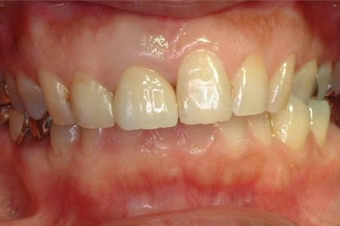 57歳女性、歯が折れたことを主訴に来院さなりました。