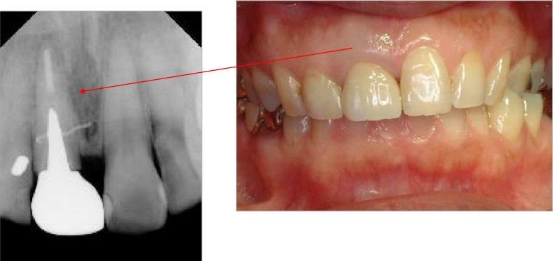 根っこの部分で歯が折れてしまっていますので、歯を抜く必要がありました。この歯を抜いて、その場所にインプラントすることになりました。