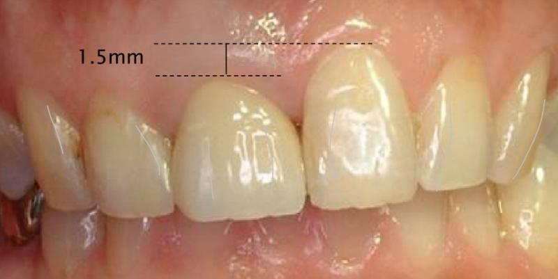 この図でわかるように、真ん中の歯はもともと高さが1.5mm違います。そこでインプラントを行う際は、見た目も以前より良いものを目指しました。