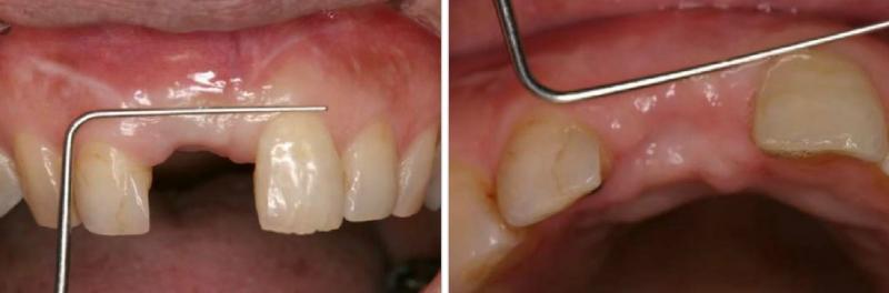 インプラントを埋めた後の写真です。歯を抜いた時の傷口はきれいに治っています。この後、歯の頭の部分を作っていきます。