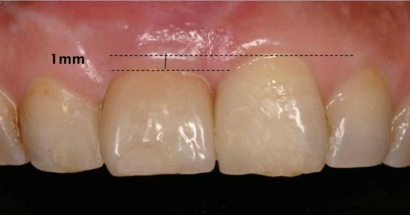 仮歯を入れた段階です。仮歯なので、まだ修正が可能です。