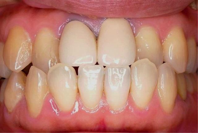 今回の症例の患者さんです。上の前歯2本が無いのが気になるくらいでしょうか?