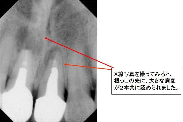 X線写真を撮ってみると、根っこの先に、大きな病変が2本共に認められました。
