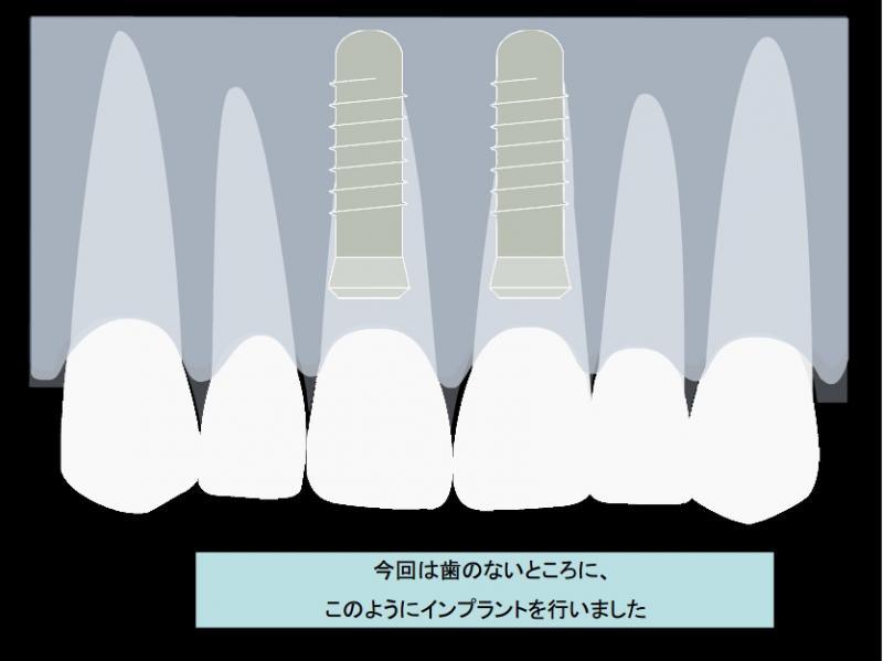 今回は歯のないところに、このようにインプラントを行いました。