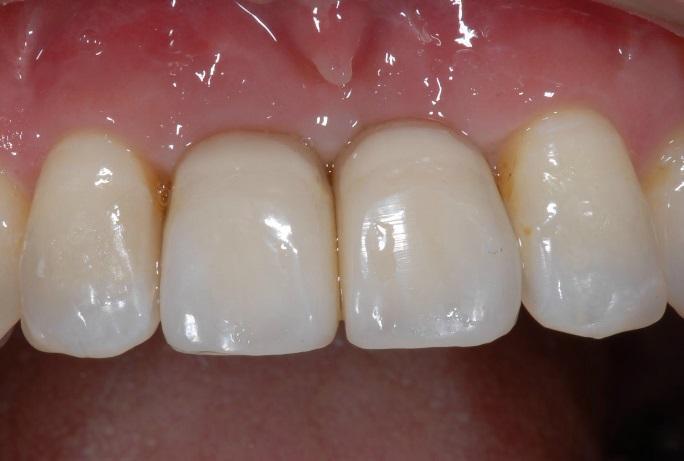 仮歯をセットし、周りの歯や歯茎との調和を確認します。