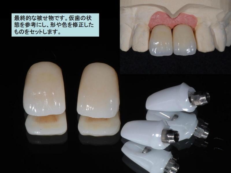 最終的な被せ物です。仮歯の状態を参考にし、形や色を修正したものをセットします。