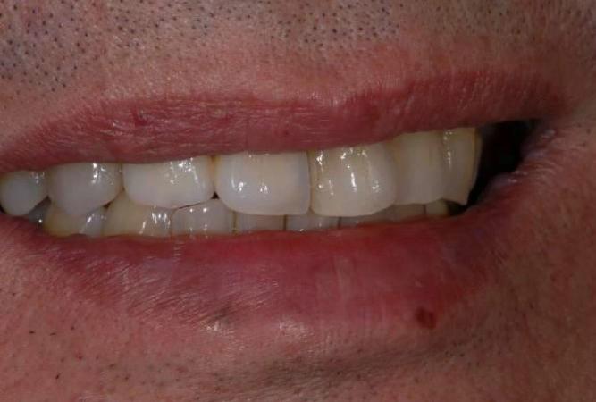 口の状態を合わせてみても、本物の歯と見分けるのは難しいです。