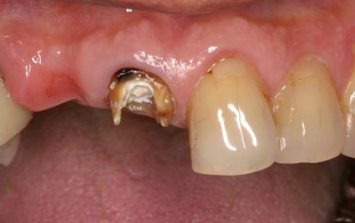 右上の前歯一本抜けてしまい、その横の歯も大きく欠けています。