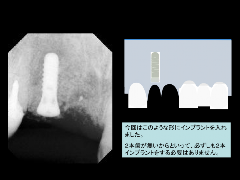 今回はこのような形にインプラントを入れました。2本歯が無いからといって、必ずしも2本インプラントをする必要はありません。