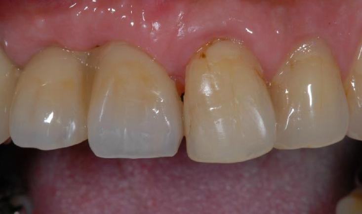 インプラントを埋めたあと、仮歯を合わせた状態です。