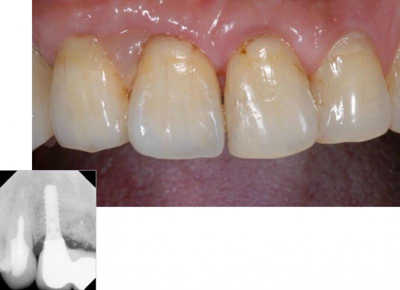 インプラントを終え、被せ物をセットした状態の写真です。周りの歯とも形、色ともなじんだものができあがりました。