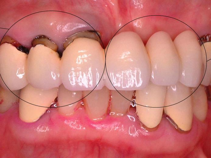 左の反対側を支えている歯は負担を受けており、根っこが露出してきています。右側にあるこれらの歯は一見きれいですが、人工的なもので、根っこはありません。