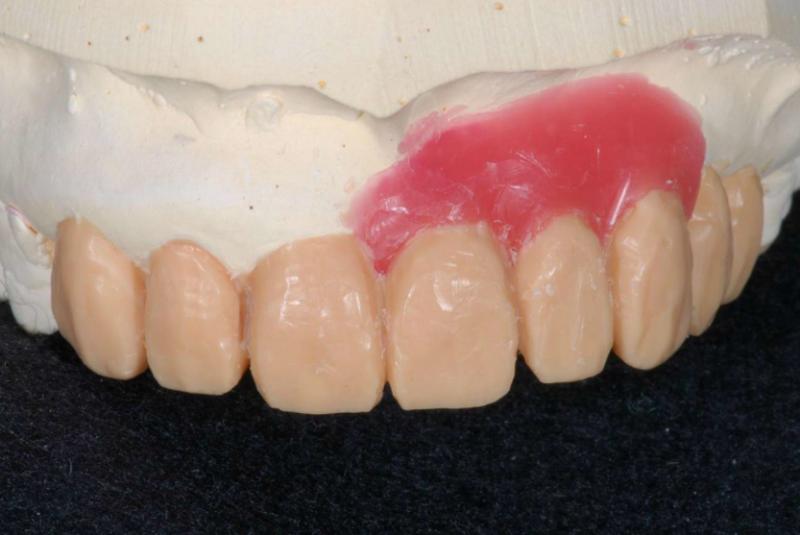 歯の型をとり、理想的な形をワックスでデザインします。