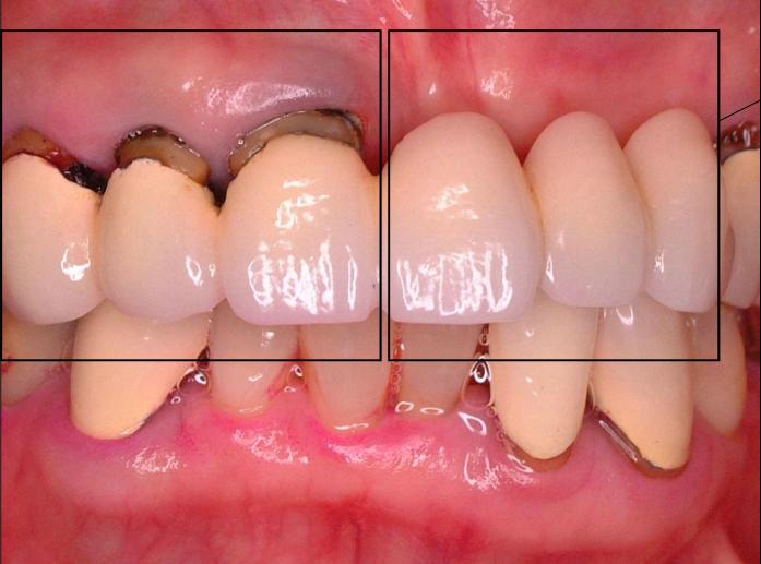 左側の部分を歯茎の形に合わせて作り直すことにしました。右側、三本の歯のうち、真ん中以外の2本にインプラントを行うことにしました。