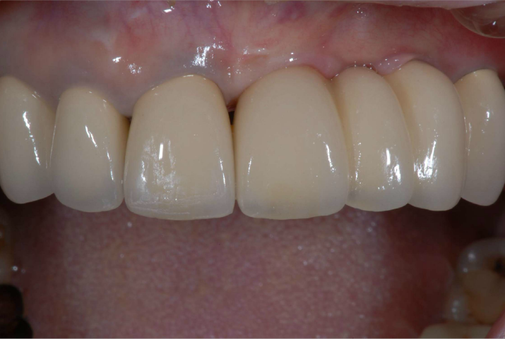 前歯を全体的にきれいに作り直した後の写真です。