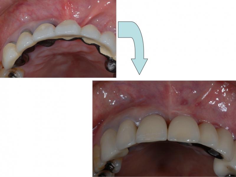 歯の並びもきれいになりました。インプラントを埋めるときに人工的な骨を一緒に入れることで、歯茎の部分の形も改善されました。