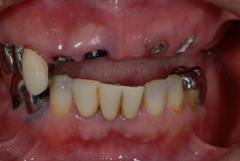 上顎の前歯は抜歯することになりました。