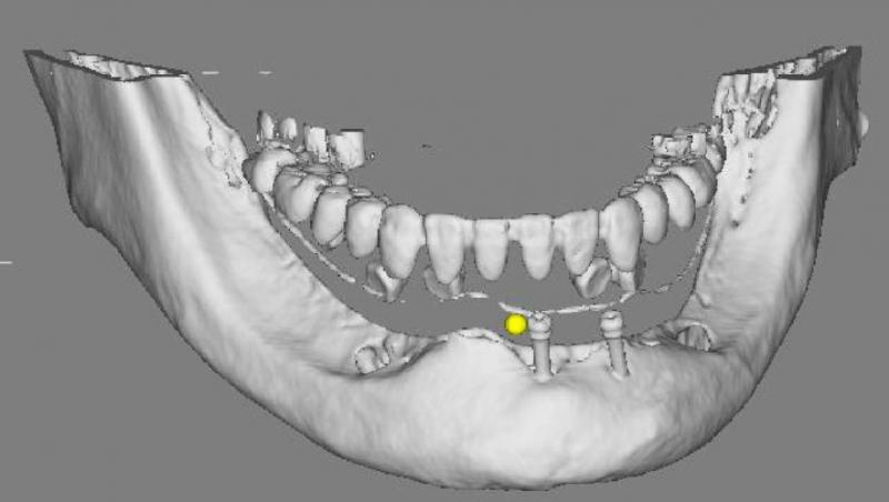 CTという機械でお口の中を三次元的に映像化し、コンピュータ上でインプラントの位置を決めます。