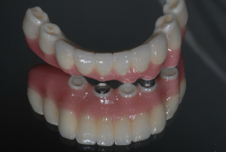 インプラントの上に装着するセラミックの歯です。