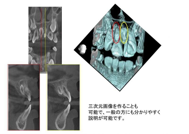 三次元画像を作ることも可能で、一般の方にも分かりやすく説明が可能です。