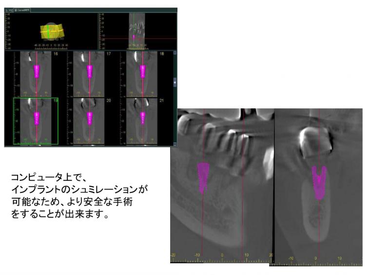 コンピュータ上でインプラントのシミュレーションが可能なため、より安全な手術をすることが出来ます。