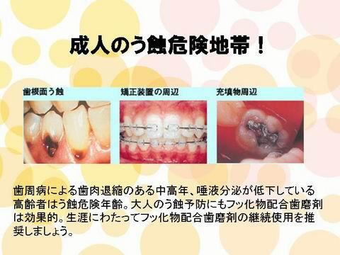 上の図は、成人の虫歯の危険地帯です。歯の根元や一度治療した歯の人工物と自分の歯の境目が危険度の高いところです。