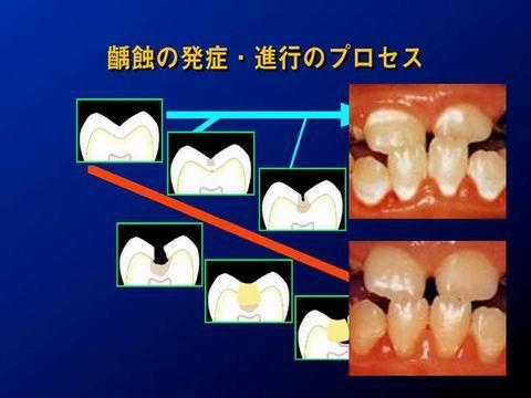 虫歯は、上野図のように進行します。歯の表層から始まって徐々に内部に進行します。