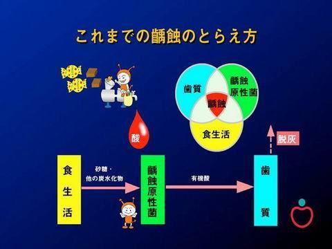 上の図は、以前まで考えられていた虫歯のできるプロセスです。砂糖を食べると、虫歯菌が酸を出し歯が解ける。--こんな話を聞いたことはありませんか?