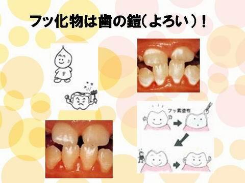 """ようするに、フッ素を上手に取り入れると、歯が強くなり虫歯になりにくい歯になるのです。皆さんも上手に生活に取り入れて虫歯と縁を切りましょう! <br />近いうちにフッ素の使用法についてもHPにアップします。 *なお一部のスライドは、<a href=""""http://www.healthcare.gr.jp/"""">日本ヘルスケア研究会</a>のものを借用しています。"""