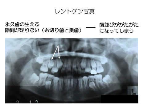 小児歯科では、歯の生え代わりの時期には、X線による診査などから総合的に判断し、大人の歯の本数や、将来の歯並び・かみ合わせを見据えた治療計画を立案します。このお子様では、将来、大人の歯の生えるスペースが不足し、健全な歯並びの育成に支障が生じると、予測されました。