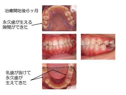 歯の生え変わりの時期です。咬合誘導では、このタイミングを生かすことで、健全な歯並び・かみ合わせの育成に弾みをつけます。
