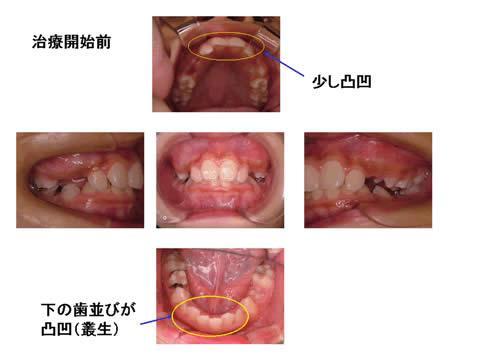 治療前のお口の中の写真です。診断結果に基づき、治療計画を立案し、装着する装置を決定します。