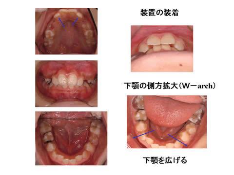 治療計画に従い、お口の中に装置を装着し、経過を観察しながら、装置の調整を行います。